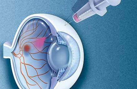 Injection Intra-Vitréenne